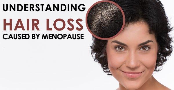 Hair Loss and Menopause